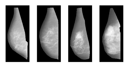 breast cancer density